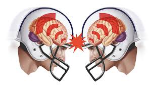 Visual image of reaction when 2 helmets collide in football.